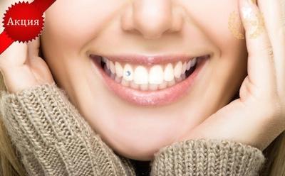 Украшения для зубов за 1000 руб.