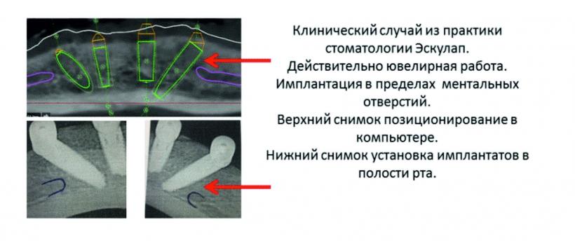 """Уникальная операция в стоматологии """"Эскулап"""""""